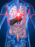 Battement de coeur/heartattack Images stock