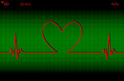 Battement de coeur médical Photos libres de droits