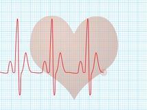 Battement de coeur médical Images stock