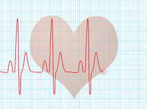 Battimento di cuore medico Immagini Stock