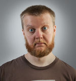 Bearded man with bulging eyes Stock Image