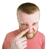 Bearded man pointing at a pimple on his nose. Unhappy bearded man pointing at a pimple on his nose royalty free stock image