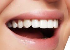 Beau sourire avec blanchir des dents Photo dentaire Macro plan rapproché de bouche femelle parfaite, rutine de lipscare Image stock
