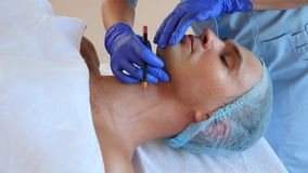 Beautician делает маркировки на стороне человека с карандашем созрейте над женщиной пластической хирургии белой Пластмасса сторон видеоматериал