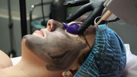 Carbon peeling. Beautician laser removes old skin with carbon fiber layer. Carbon peeling. Laser flash stock footage