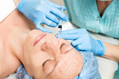 Beautician makes biorevitalization to young woman. The cosmetic procedures for the face. Beauty treatments in the spa Stock Photos