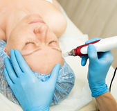 Beautician makes fractional mesotherapy to young woman. The cosmetic procedures for the face. Beauty treatments in the Royalty Free Stock Photography