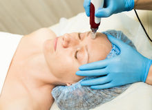 Beautician makes fractional mesotherapy to young woman. The cosmetic procedures for the face. Beauty treatments in the Royalty Free Stock Image