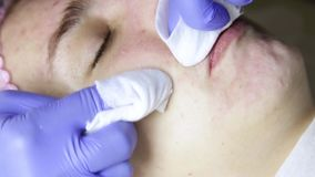 Beautician squeezing pimple blackheads for young wonan in beauty salon. facial skin care
