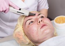 Beautician at work. Ultrasonic face cleaning procedure for problem skin. Pore cleansing, oxygen saturation for woman`s. Face stock photo