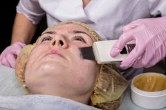 Beautician at work. Ultrasonic face cleaning procedure for problem skin. Pore cleansing, oxygen saturation for woman`s. Face royalty free stock image