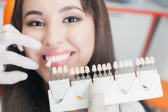 Beautiful asian woman smile with healthy teeth whitening. Dental care concept. Set of implants with various shades of tone Royalty Free Stock Image