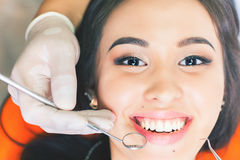 Beautiful asian woman smile with healthy teeth whitening. Dental care concept. Set of implants with various shades of tone Stock Photography