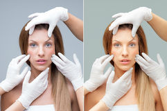 Beautiful face being examinated plastic surgeons hands Royalty Free Stock Photo