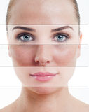 Beautiful female face with parts of flawless skin Stock Images