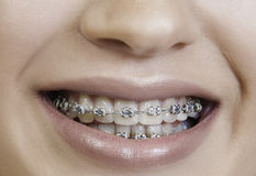 Beautiful girl with brace closeup Royalty Free Stock Images