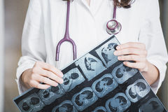 Beautiful girl doctor in a white coat examines X-ray photo of th. E patient to identify the problem. Professional conversation, consultation of doctors. The work Stock Images