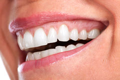 Beautiful healthy smile. Royalty Free Stock Photos