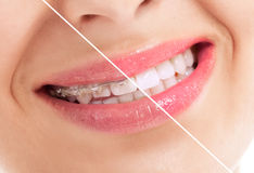 Beautiful heathy smile before and after braces. Close up Stock Photography
