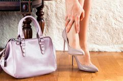Beautiful legs woman with hand bag pain in the legs, fatigue, treatment, medicine stock images