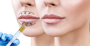 Lips of adult woman before and after augmentation. Beautiful lips of adult woman. Before and after lips filler injections. Fillers concept Stock Image