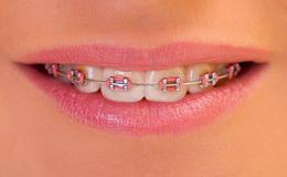 Beautiful lips. Extremely close up of a dental braces Royalty Free Stock Images