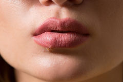 Beautiful lips virus infected herpes Stock Image