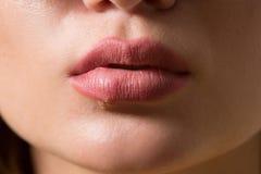 Beautiful lips virus infected herpes. Beautiful sexy lips virus infected herpes. close-up Stock Image