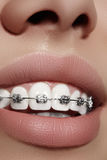 Beautiful white teeth with braces. Dental care photo. Woman smile with ortodontic accessories. Orthodontics treatment Royalty Free Stock Photo