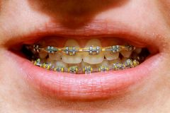 Beautiful macro shot of white teeth with braces. Dental care photo. Beauty woman smile with ortodontic accessories. Orthodontics t royalty free stock image