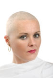 Beautiful middle age woman cancer patient without hair royalty free stock images