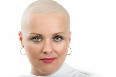 Beautiful middle age woman cancer patient without hair stock photography