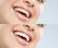 Beautiful Natural Woman. Beautiful young European woman with white teeth. Before and after treatment difference Stock Photo