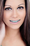 Beautiful portrait of a young girl with brackets Royalty Free Stock Photography