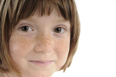 Beautiful skin of freckled girl Stock Photo