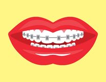Beautiful smile with aesthetic braces Royalty Free Stock Photography
