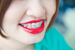 Beautiful smile of atractive woman wearing dental braces. Stock Photography