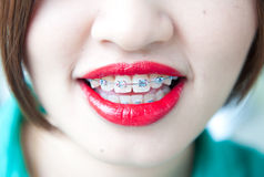 Beautiful smile of atractive woman wearing dental braces. Stock Photos