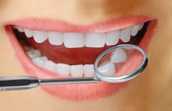 Beautiful smile. Beautiful female smile and stomatological mirror Stock Photo