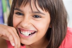 Beautiful smile with orthodontic appliance. Portrait of a cute girl laughing wearing a removable orthodontic appliance Stock Images