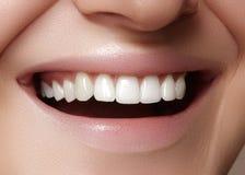 Beautiful smile with whitening teeth. Dental photo. Macro closeup of perfect female mouth, lipscare rutine.  Stock Image