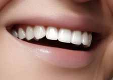 Beautiful smile with whitening teeth. Dental photo. Macro closeup of perfect female mouth, lipscare rutine Royalty Free Stock Photo