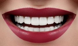 Beautiful Smile with Whitening Teeth. Dental Photo. Macro Closeup of Perfect Female Mouth, Lipscare or Tooth Care Rutine royalty free stock photos