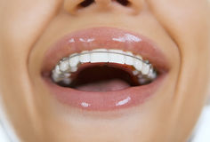 Beautiful smiling girl with retainer for teeth, close-up Stock Photos