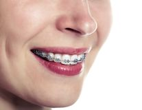 Beautiful smiling girl with retainer for teeth. Close up stock image