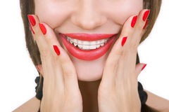 Beautiful smiling girl with retainer for teeth, close-up Stock Photo