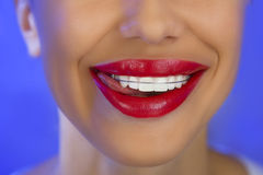 Beautiful smiling girl with retainer for teeth, close-up Royalty Free Stock Images