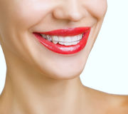 Beautiful smiling girl with retainer for teeth Stock Photos