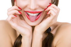 Beautiful smiling girl with retainer for teeth sticking her tong Stock Photo
