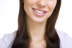 Beautiful smiling girl with retainer for teeth. On white royalty free stock photos